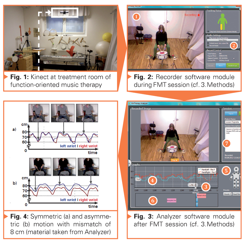 Field Study of a Low-Cost Markerless Motion Analysis for Rehabilitation and Sports Medicine