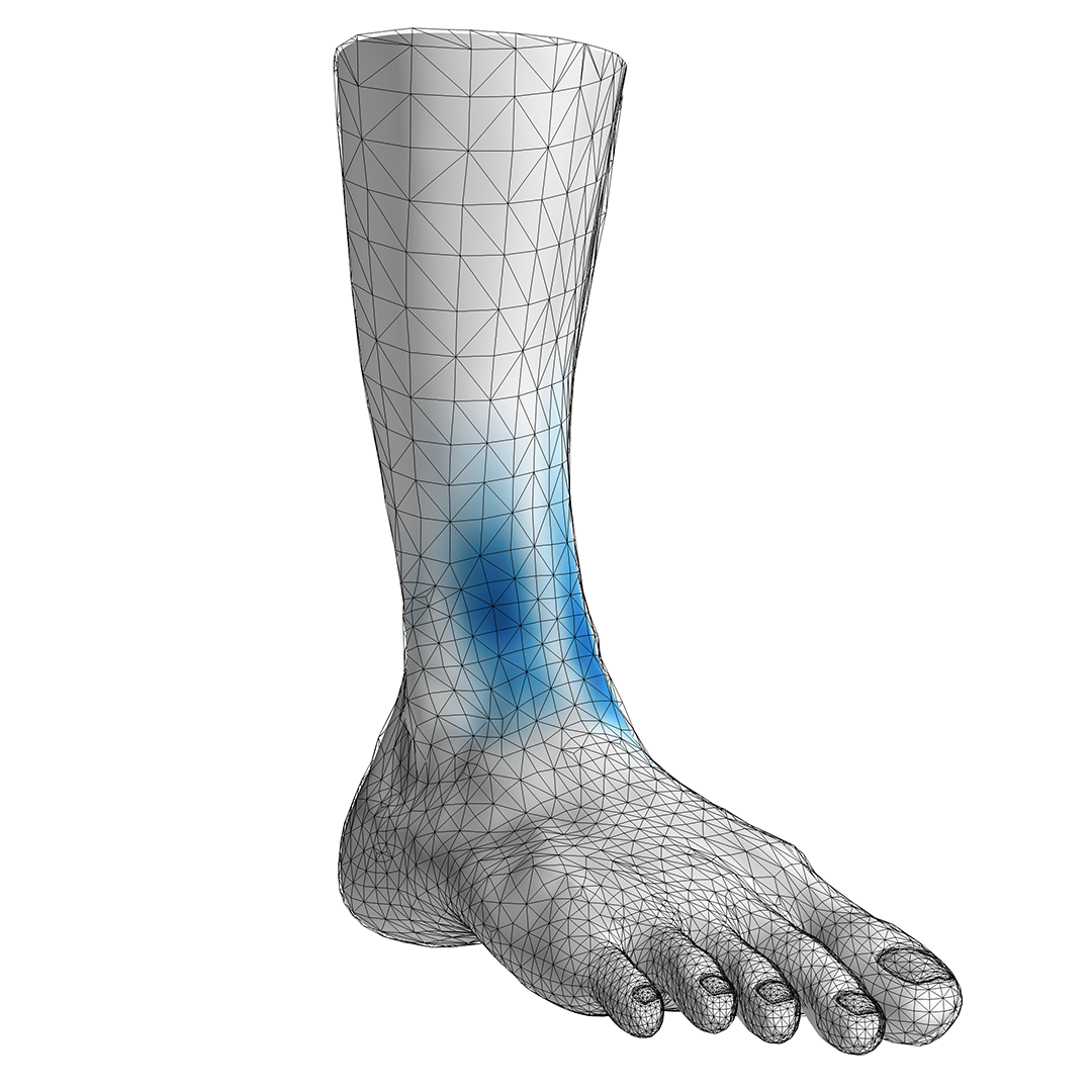 Estimation of Muscle Activity in One-Leg Stance from 3D Surface Deformation